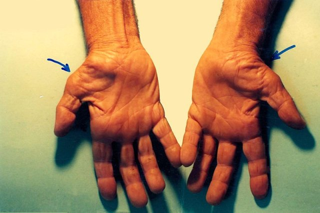 Untreated carpal tunnel syndrome