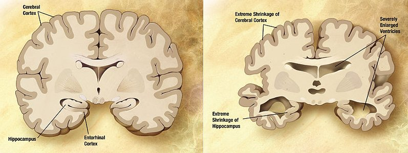 Comparison of a normal aged brain (left) and the brain of a person with Alzheimer's (right). Differential characteristics are pointed out.
