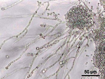 Candida albicans at 200X magnification. Picture courtesy of wikipedia.