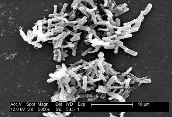 Micrograph of Clostridium difficile. Picture courtesy of wikipedia.